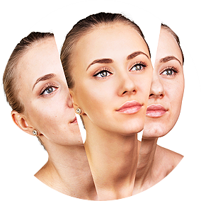 facial Rejuvenation Clifton NJ